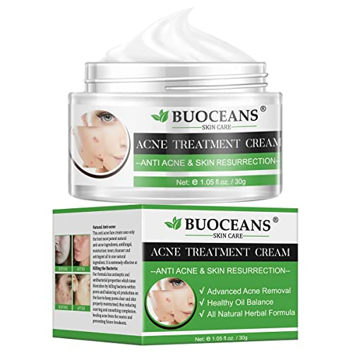 Acne Treatment Acne Removal Cream Pimple Treatment Face Skin